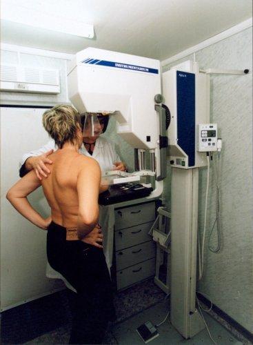 маммограф 1