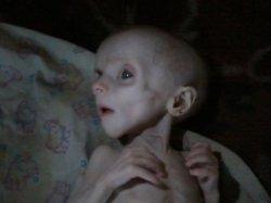 В Донецкой больнице скончался от истощения полугодовалый ребенок пьющей семьи