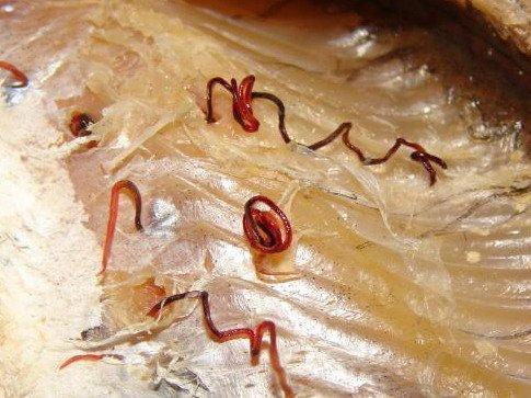 какие есть паразиты в организме человека